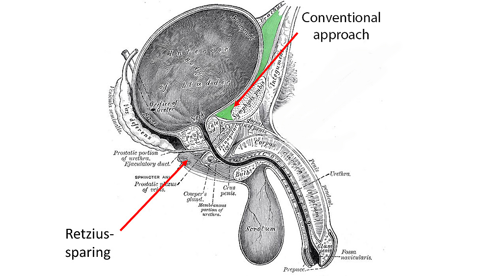 Retzius-sparing radical prostatectomy diagram by Professor Christopher Eden